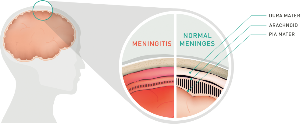 meningitis-illustration